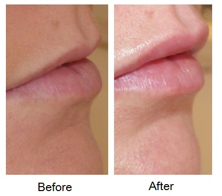 Before and after lip treatment