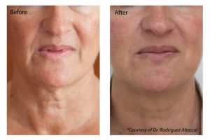 Latest News from Bank Facial Aesthetics Clinics
